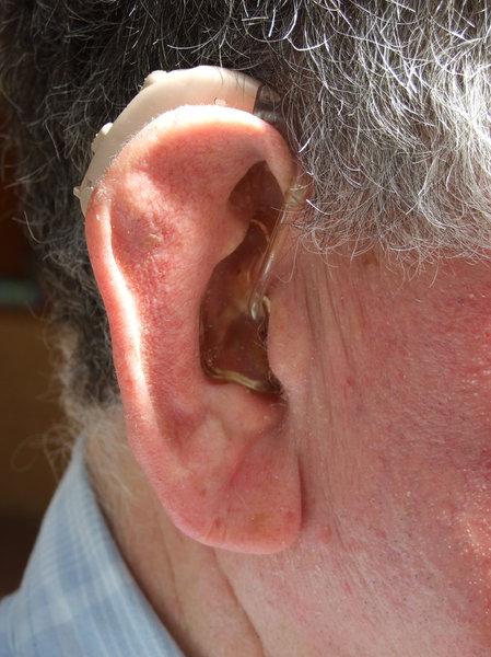 hearing impaired: ear with hearing aid